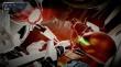 Metroid Dread thumbnail